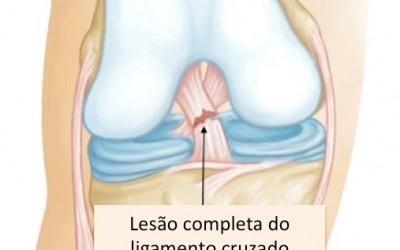 Lesão do Ligamento Cruzado Anterior (LCA)