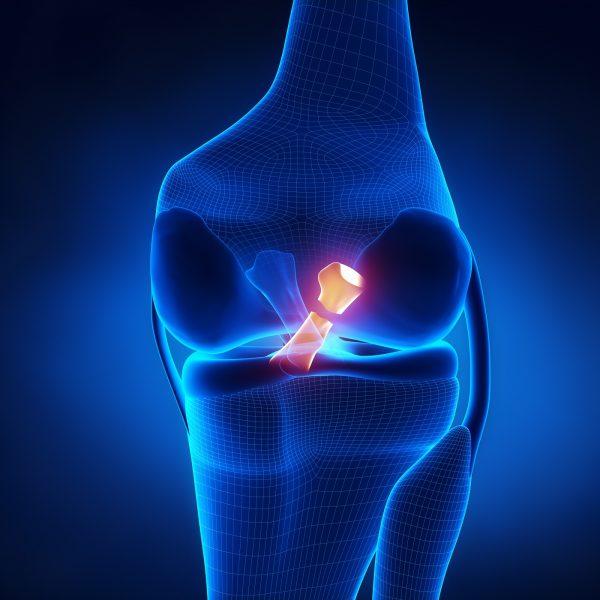 """A cirurgia """"aberta"""", em fins da década de 1980 e início da de 1990, foi substituída pela artroscopia, um procedimento bem menos invasivo, com ganhos inegáveis à saúde do paciente, incluindo uma recuperação mais rápida, por oferecer menos danos a tecidos adjacentes da articulação."""