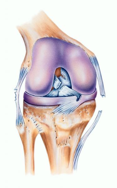 As lesões ligamentares estão entre as mais comuns em praticantes de futebol. A mais comum é a do ligamento colateral medial, responsável por impedir que o joelho vá para dentro, ou seja, faça o movimento de valgo. Esse ligamento costuma cicatrizar sozinho, então, seu tratamento costuma ser conservador, sem cirurgia.